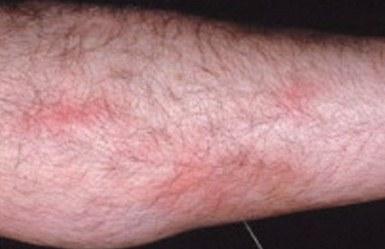 thrombophlebitis behandeling