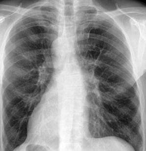 abces in de longen